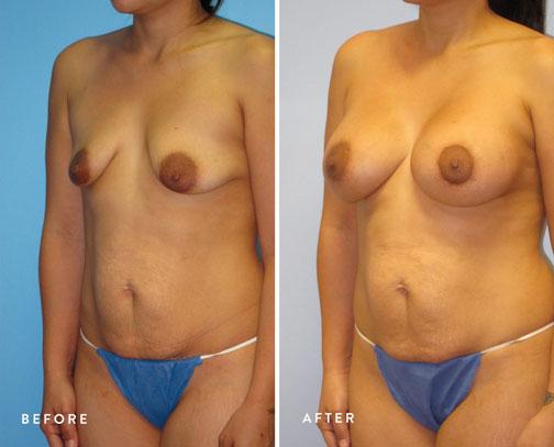 Veronica-Paiz-(breast-lift-+-breast-aug)-5.jpg