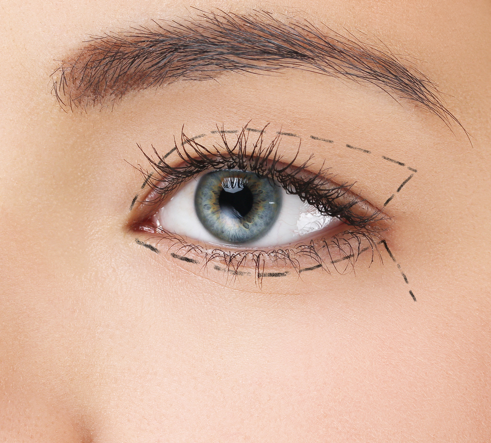 upper eyelid surgery markings