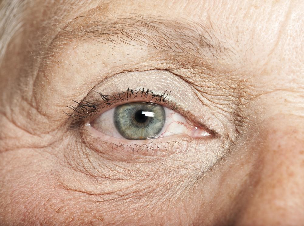 lower eyelid surgery.jpg