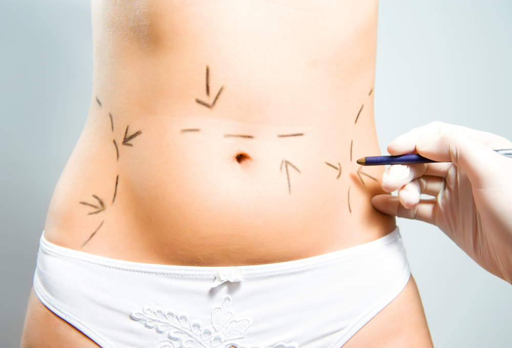 Tummy Tuck Markings.jpg
