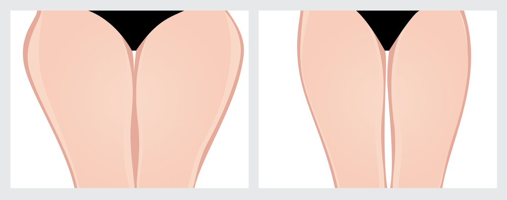 liposuction thighs