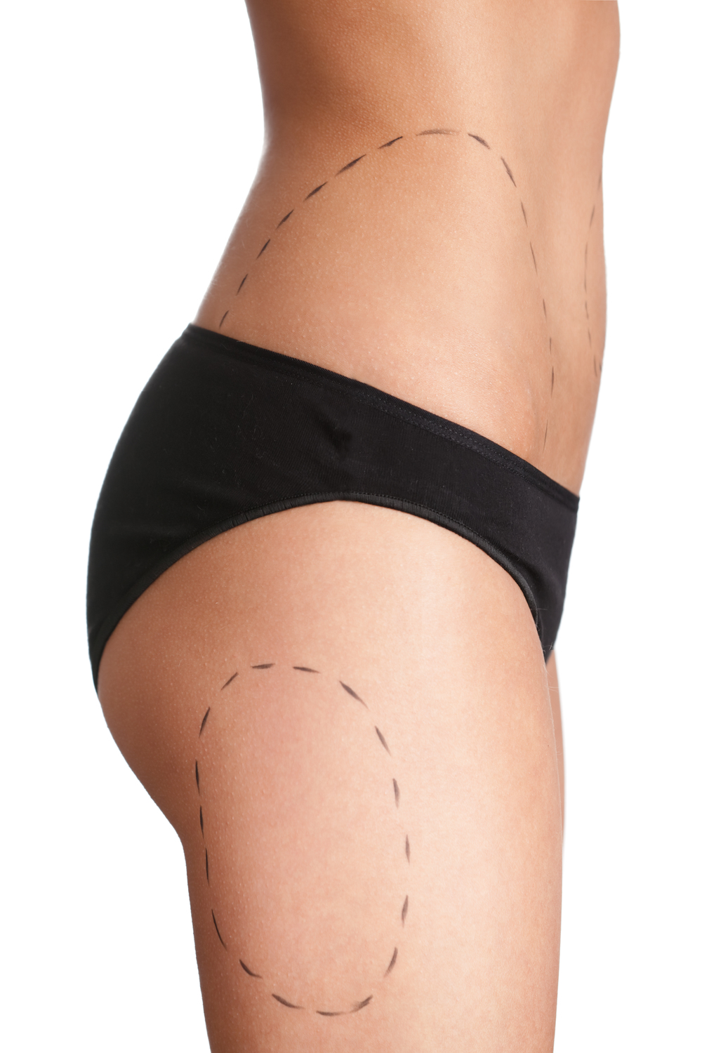 liposuction markings