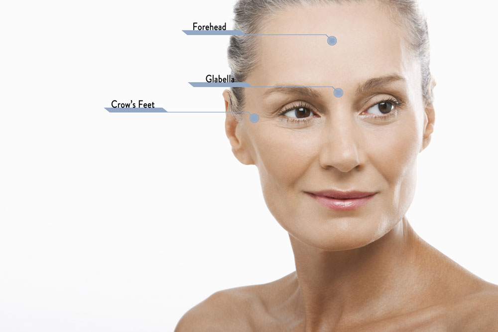 Botox Injection Areas.jpg