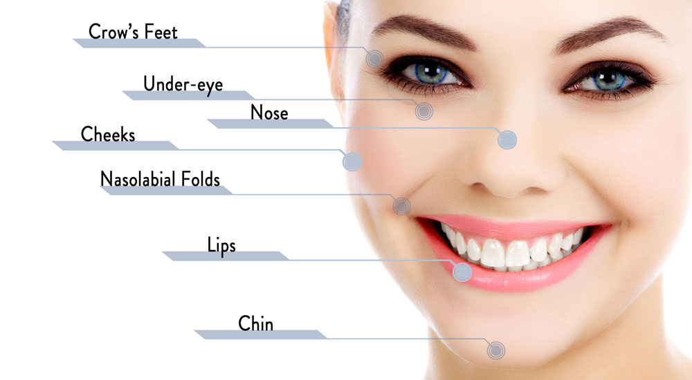 Dermal Filler Areas of Injection