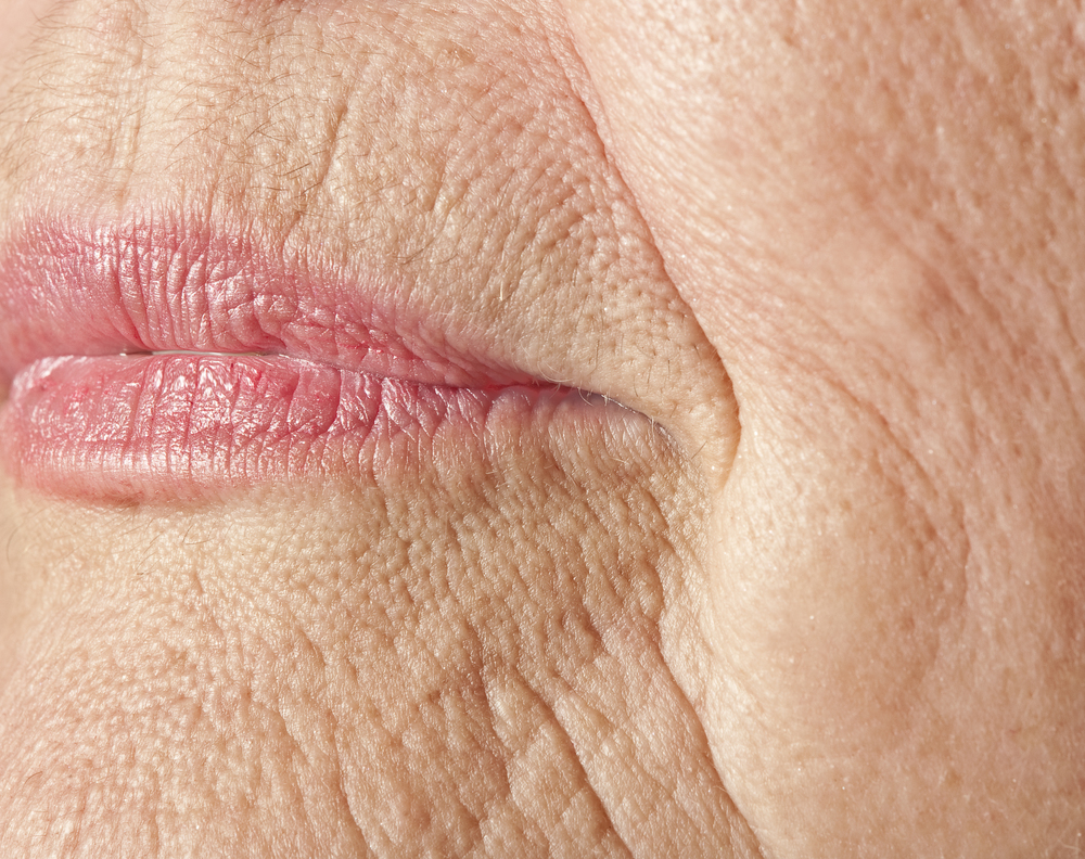 dermal fillers for wrinkles