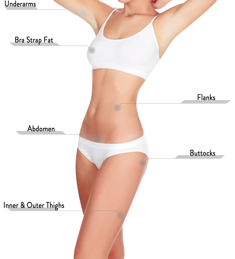 Liposuction areas