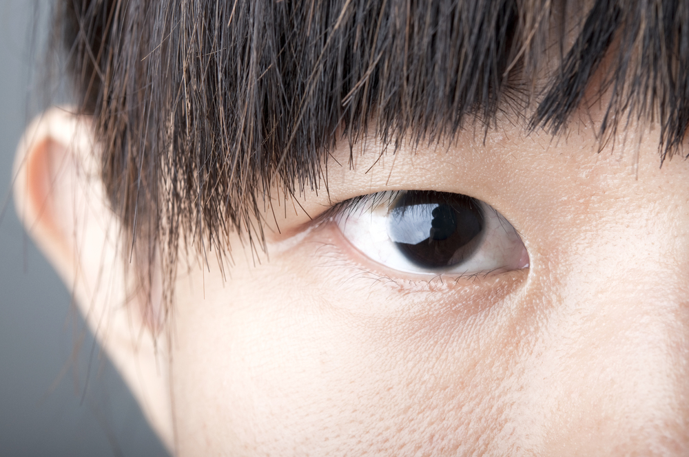 Asian Double Eyelid Surgery Before