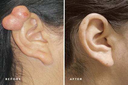 keloid removal.png