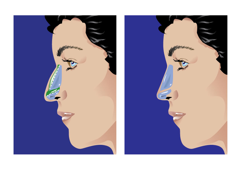 Nose Surgery Diagram
