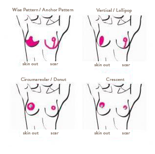 Breast-Lift-Incisions-Sites.jpg