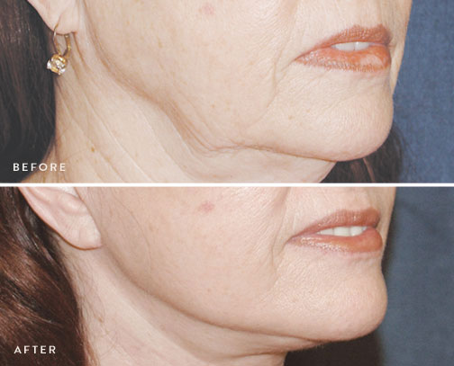 HSUSURGERY_facelift-neck-lift-before-after-6.jpg