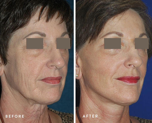 HSUSURGERY_facelift-neck-lift-before-after-7.jpg