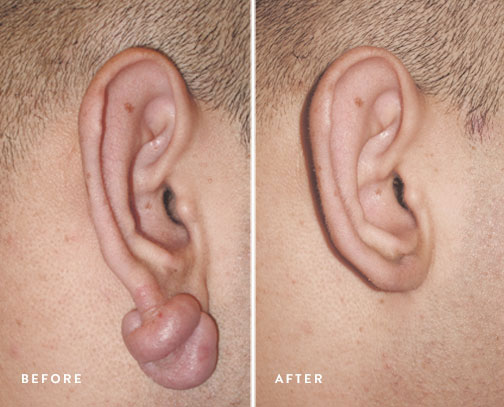 HSUSURGERY_keloid-removal-before-after-3.jpg