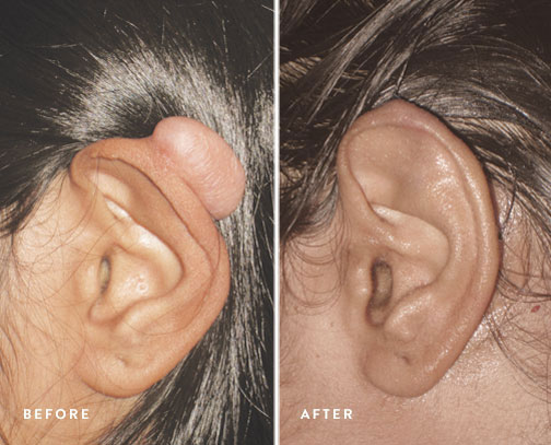 HSUSURGERY_keloid-removal-before-after-2.jpg