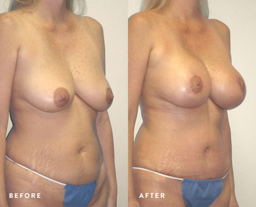 HSUSURGERY_mommy-makeover-before-after-2.jpg