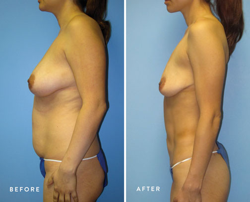 HSUSURGERY_liposuction-fat-transfer-before-after-2.jpg
