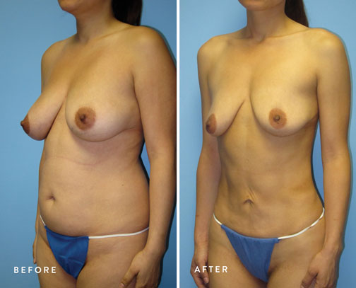HSUSURGERY_liposuction-fat-transfer-before-after-3.jpg
