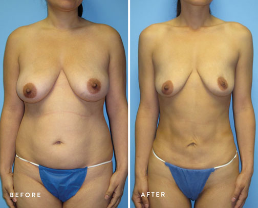HSUSURGERY_liposuction-fat-transfer-before-after-1.jpg