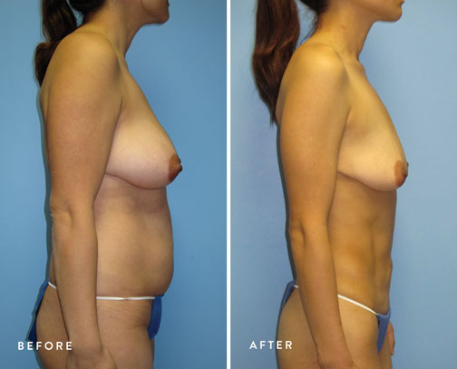 HSUSURGERY_liposuction-fat-transfer-before-after-4.jpg