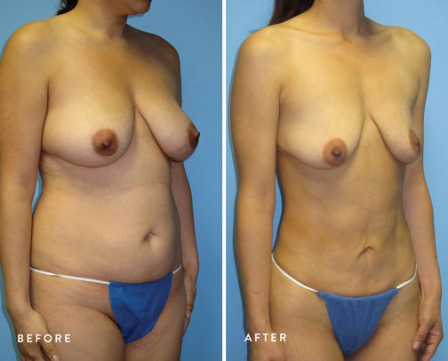 HSUSURGERY_liposuction-fat-transfer-before-after-5.jpg