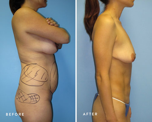 HSUSURGERY_liposuction-fat-transfer-before-after-8.jpg