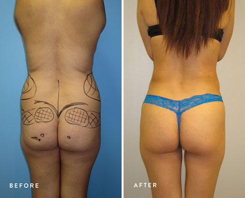 HSUSURGERY_liposuction-fat-transfer-before-after-7.jpg