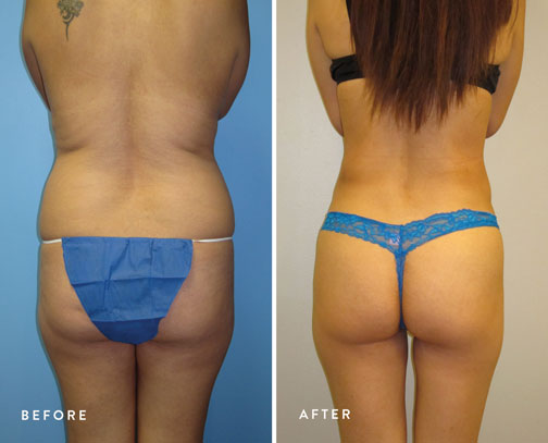 HSUSURGERY_liposuction-fat-transfer-before-after-6.jpg