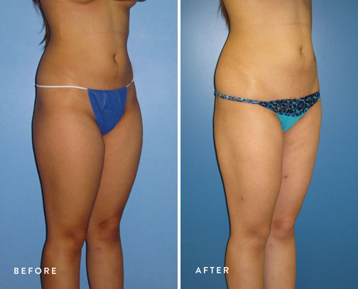 HSUSURGERY_liposuction-fat-transfer-before-after-10.jpg