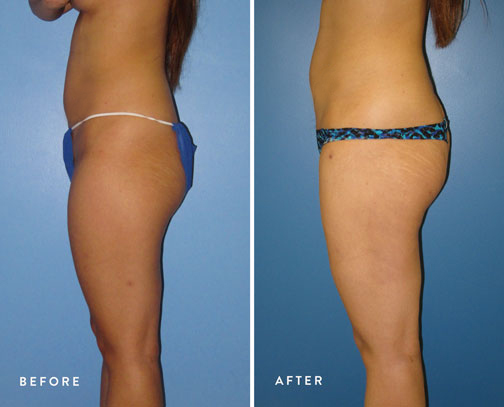 HSUSURGERY_liposuction-fat-transfer-before-after-11.jpg