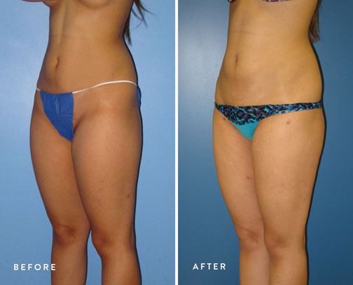 HSUSURGERY_liposuction-fat-transfer-before-after-13.jpg