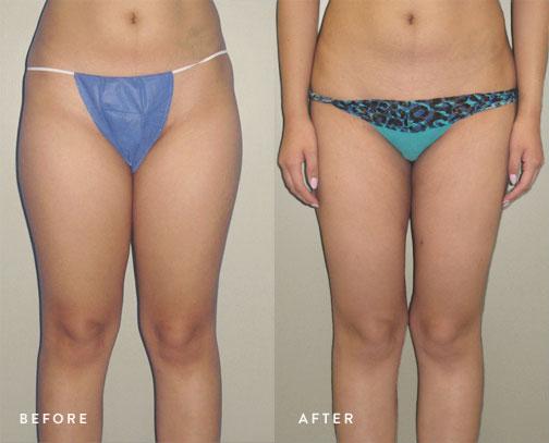 HsuPlasticSurgery_thighs_liposuction_before-after.jpg