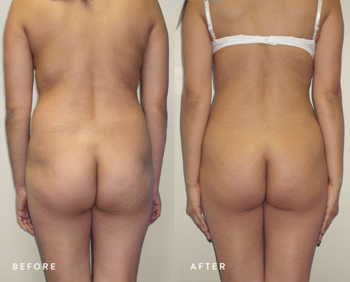 HSUSURGERY_liposuction-fat-transfer-before-after-15.jpg