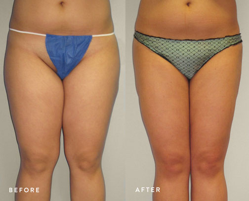 HSUSURGERY_liposuction-fat-transfer-before-after-16.jpg
