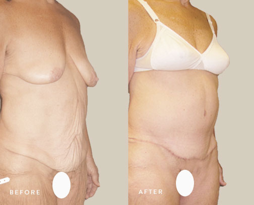 HSUSURGERY_weight-loss-before-after-3.jpg