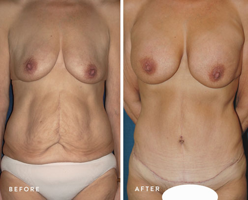 HSUSURGERY_weight-loss-before-after-5.jpg