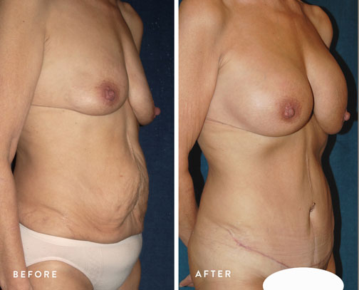 HSUSURGERY_weight-loss-before-after-6.jpg