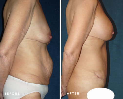 HSUSURGERY_weight-loss-before-after-7.jpg