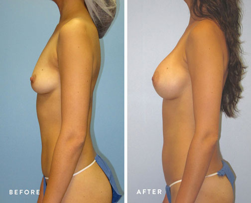 HSUSURGERY_breast-augmentation-before-after-2.jpg