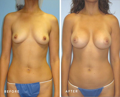 HSUSURGERY_breast-augmentation-before-after-1.jpg