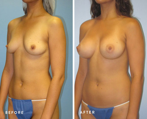 HSUSURGERY_breast-augmentation-before-after-3.jpg