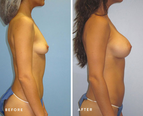 HSUSURGERY_breast-augmentation-before-after-4.jpg
