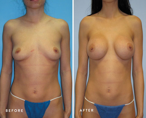 HSUSURGERY_breast-augmentation-before-after-35.jpg