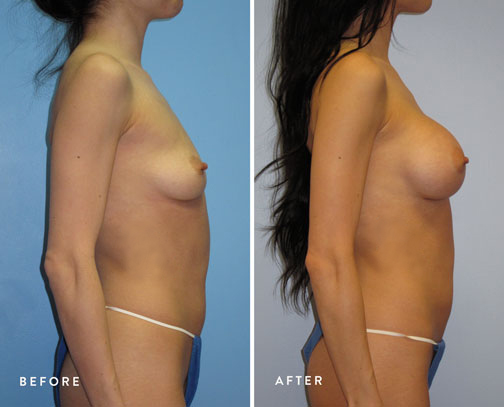 HSUSURGERY_breast-augmentation-before-after-36.jpg
