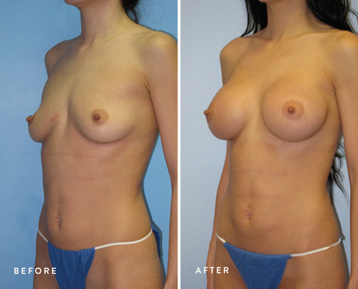 HSUSURGERY_breast-augmentation-before-after-34.jpg