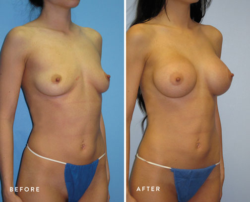 HSUSURGERY_breast-augmentation-before-after-37.jpg