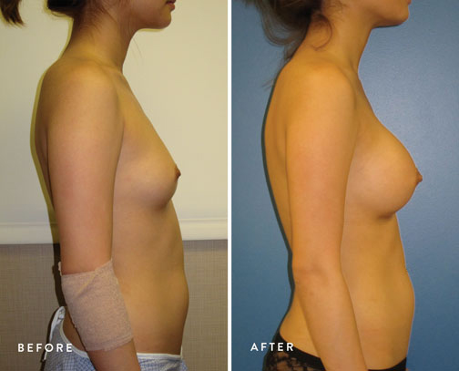 HSUSURGERY_breast-augmentation-before-after-30.jpg