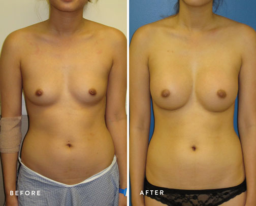HSUSURGERY_breast-augmentation-before-after-29.jpg