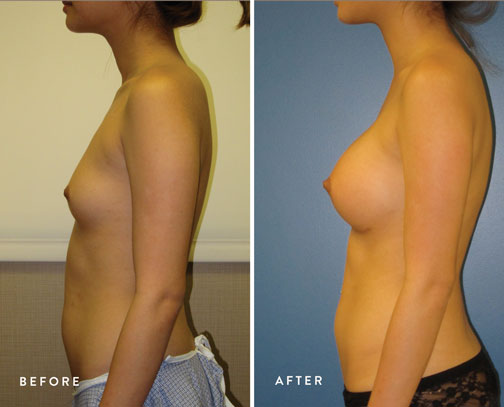HSUSURGERY_breast-augmentation-before-after-32.jpg