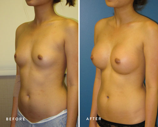 HSUSURGERY_breast-augmentation-before-after-33.jpg