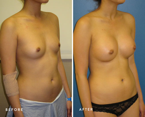HSUSURGERY_breast-augmentation-before-after-31.jpg